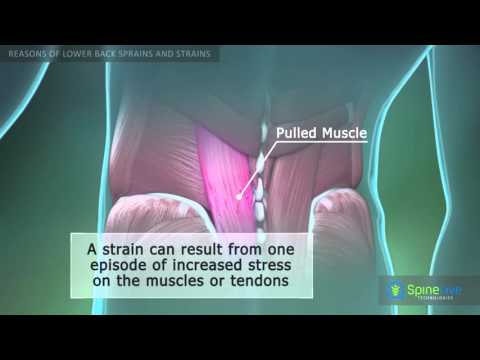 Lower Back Sprains and Strains Reasons