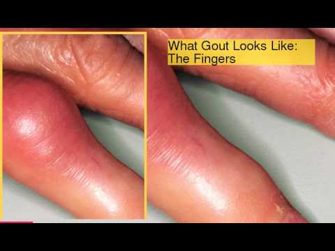 Gout Pictures Causes, Symptoms, and Treatments of Gout