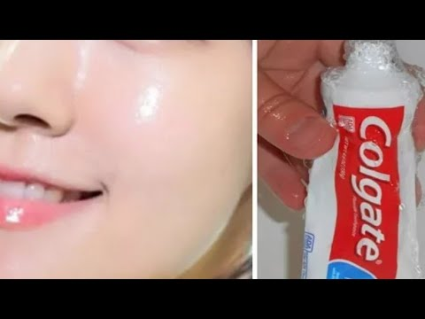 Every nights apply Baking soda and Toothpaste on the face in 5 minutes and whatch what happens.