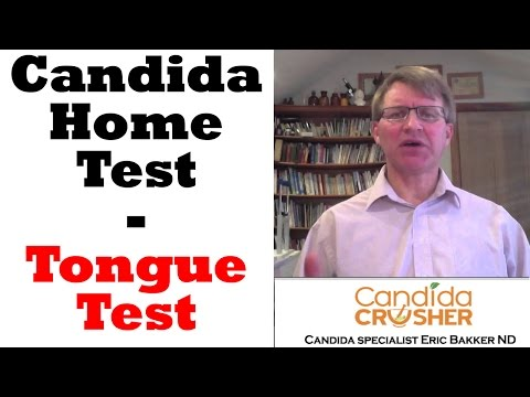 What Is The Tongue Test For Candida?