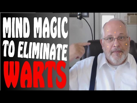 How-to Get Rid of Warts on Your Children - Mind Hack #3