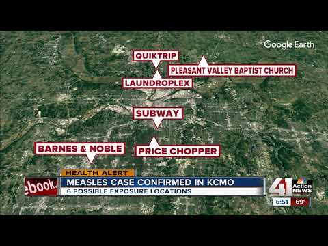 Possible exposure to measles at 6 KCMO locations