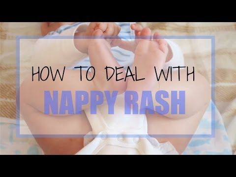 How to Deal With Nappy Rash: Tips & Products | Ysis Lorenna