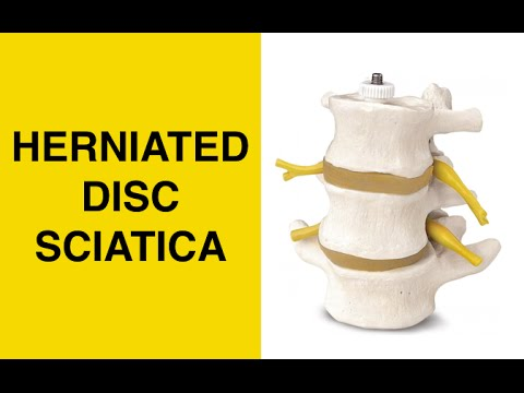 Sciatic Nerve & Herniated Disc Exercises - Treatment to Relieve Sciatica Nerve Pain