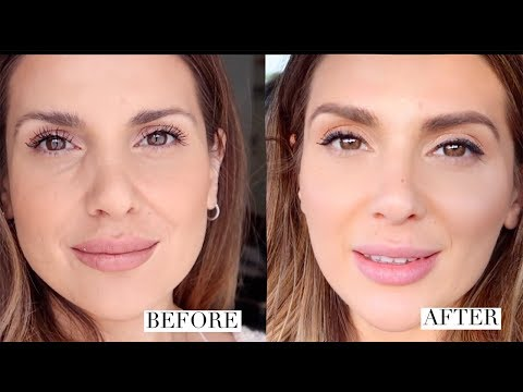 HOW I GOT RID OF UNDER EYE HOLLOWS AND IMPROVED MY OVERALL LOOK |  ALI ANDREEA