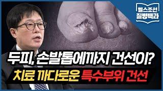 [특수부위 건선] 건선 환자의 손발톱 변형... '건선'이 원인이라고?