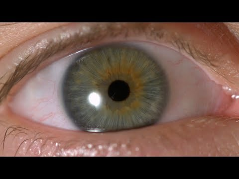 My Iris Wobbles! - Eye In Slow Motion