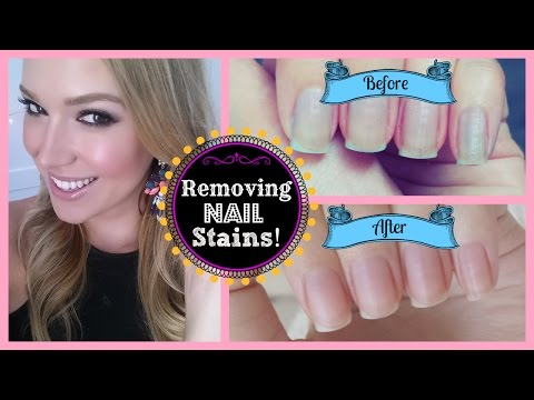 DIY: How To Remove Stains From Your Nails | MissJenFABULOUS