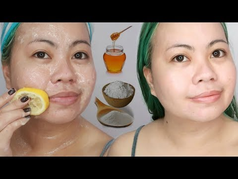 Whiten SKIN with BAKING SODA (fight acne, hyperpigmentation & get fair skin)