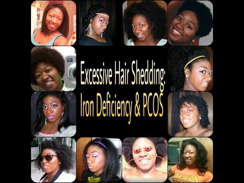 Excessive Hair Shedding: Iron Deficiency & PCOS