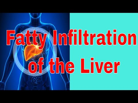 Treatment for Fatty Infiltration of the Liver