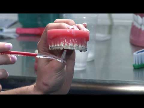 Teeth Whitening : Keeping Clear Braces Clear