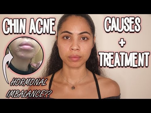 Chin Acne: Why You're Getting It & How To Prevent It Naturally