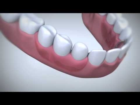 Prevent bad breath with Fixodent denture adhesive