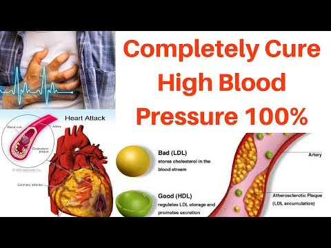High BLOOD Pressure Cure (100%) | Permanently Cure High Blood Pressure