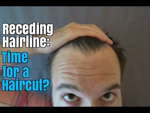 Receding Hairline: How to Know It's Time for a Haircut