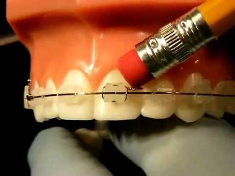 Braces Problems Video - Braces Pain, Sore Teeth, Broken Bands, Sharp Wires