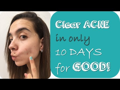 How I Cleared My Acne In 10 Days with natural ways