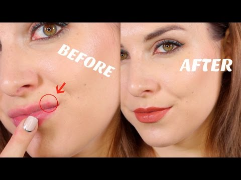 How to Cover Lip Acne | Bailey B.