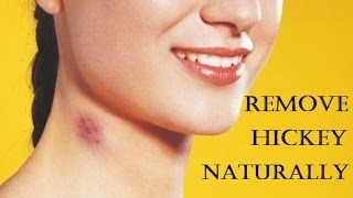 How To Get Rid Of Hickies Fast Remove A Hickey At Home