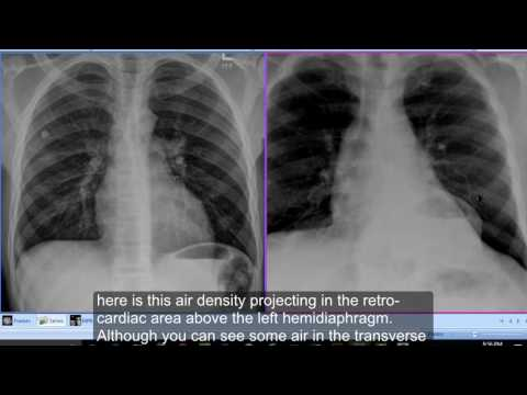 Chest x-ray, Hiatus Hernia