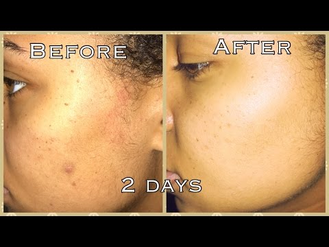 How To GET RID OF ACNE & DARK SPOTS in Days