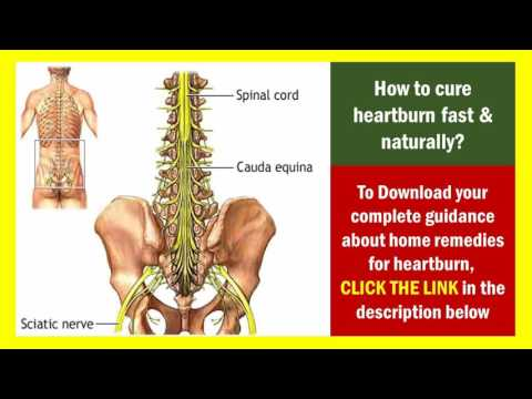homeopathic remedies for sciatica - how to relieve sciatica pain at home