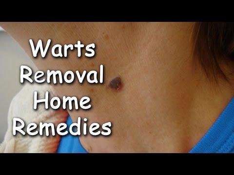 How To Get Rid Of Warts Naturally By Sachin Goyal @ ekunji.com