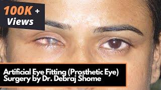 Artificial Eye Fitting (False Eye/ Ocular Prosthesis) Prosthetic Eye Fitting Surgery in Mumbai,India