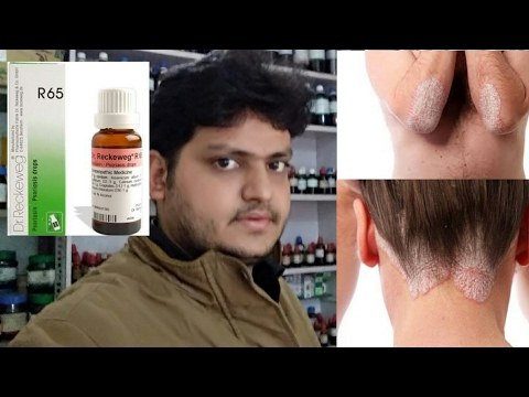 homeopathic medicine for psoriasis explain!??