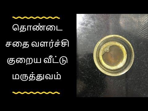 தொண்டை சதை வளர்ச்சி குறைய வீட்டு மருத்துவம் - Tamil health tips