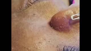 dr pimple popper  2017💐