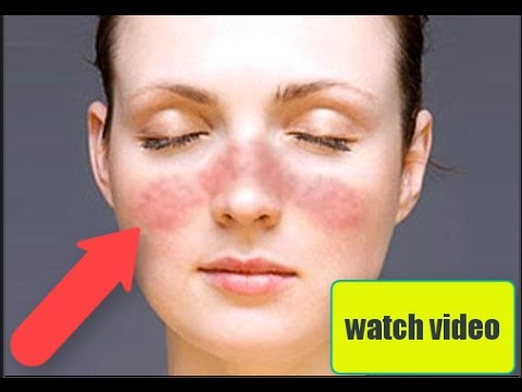 Home remedies for lupus | Lupus treatment Working 100%