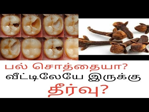 Teeth Pain Solutions in Tamil / Home Remedies for Toothache  in Tamil