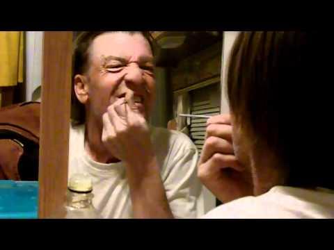bad bob diy dentist epoxy tooth filling