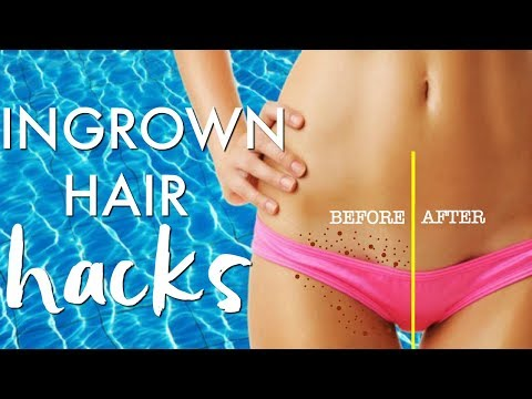 INGROWN HAIR HACKS | GET RID of INGROWN HAIRS | Paris & Roxy