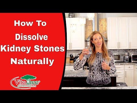 Detox : How To Use Detox to Dissolve Kidney Stones : Kidney Stones - VitaLife Episode 288