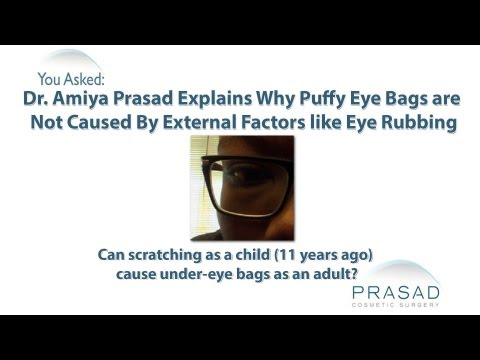 Why Puffy Eye Bags are not Caused by Excessive Eye Rubbing from an Early Age