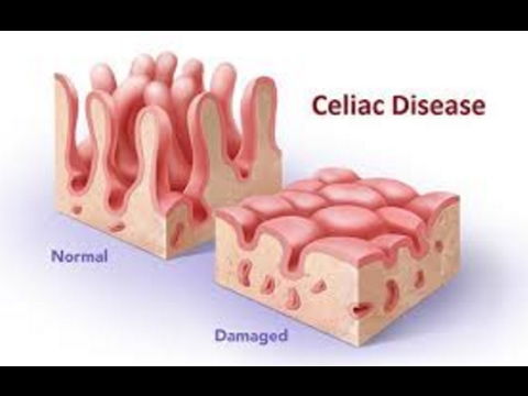 How to Cope with Celiac Disease and Prevent Flare Ups