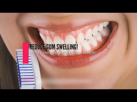 Learn How To Reduce Gum Swelling Using This Home Remedy Based On Turmeric