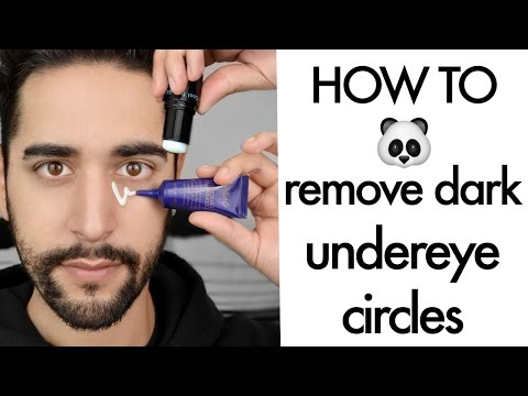 How To Remove Dark Circles And Bags Under Eyes ( tips and tricks) ✖ James Welsh