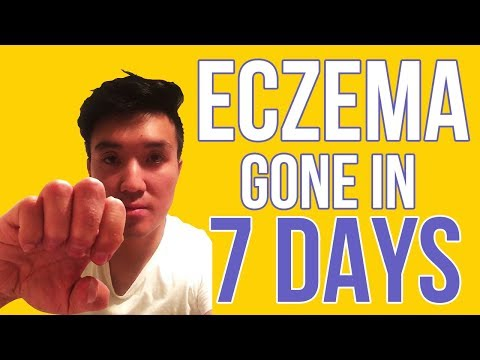 how to get rid of and best way to cure eczema on hands -best dry skin eczema cream
