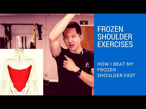 Frozen shoulder exercises - how I got relief in just two days