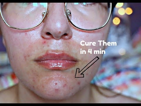 How to Treat Hormonal Acne  | white bumps on your chin
