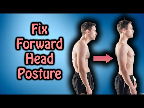 How To Fix Forward Head Posture - Correct Your Posture Naturally