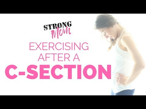 Exercising After a C-Section