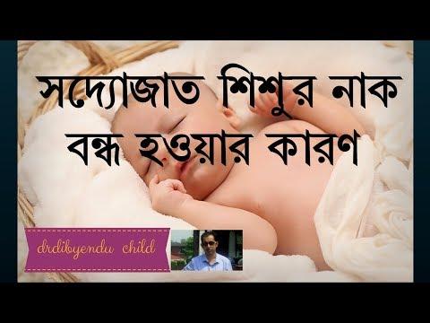 Nasal Block( Stuffy Nose ) in Newborn Baby- in Bengali -সদ্যোজাত শিশুর নাক বন্ধ হওয়া