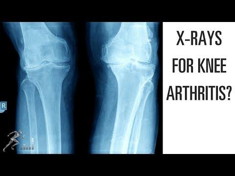 X-ray and MRI for knee arthritis