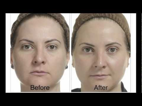 What happens after a chemical peel?