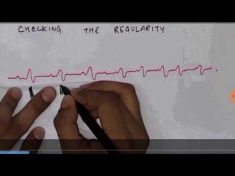 how to read an ECG or EKG, how to calculate rate and rhythm of an ECG or EKG  medical video